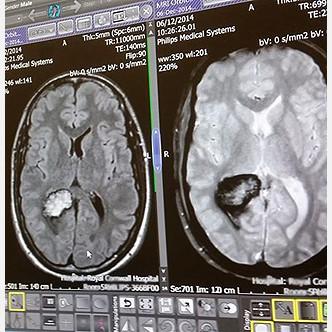 Ученые нашли возможный путь принудительной «очистки» мозга