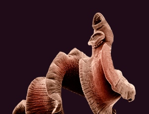 Make no mistake about it: parasitic worms are truly the most horrifying
