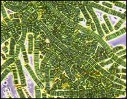 Сине-зеленые водоросли – неведомая угроза здоровью?