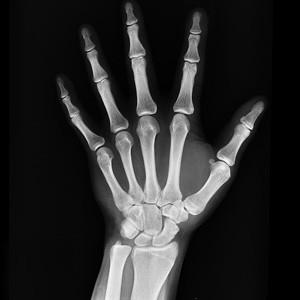 Ученые из Томска представили новый материал для восстановления костной ткани